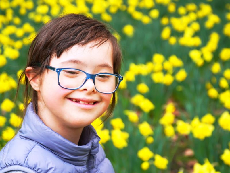 10 Causes of Down Syndrome