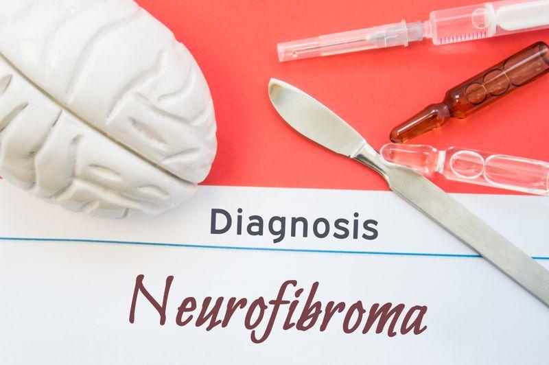 diagnosis neurofibromatosis