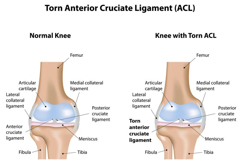 joints ACL tear