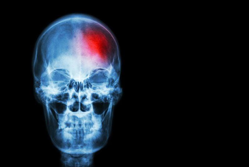 brain vasculitis