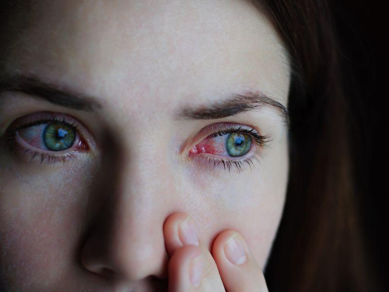 vision vasculitis