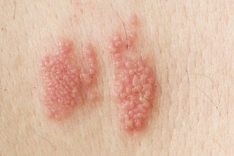 10 Home Remedies for Shingles