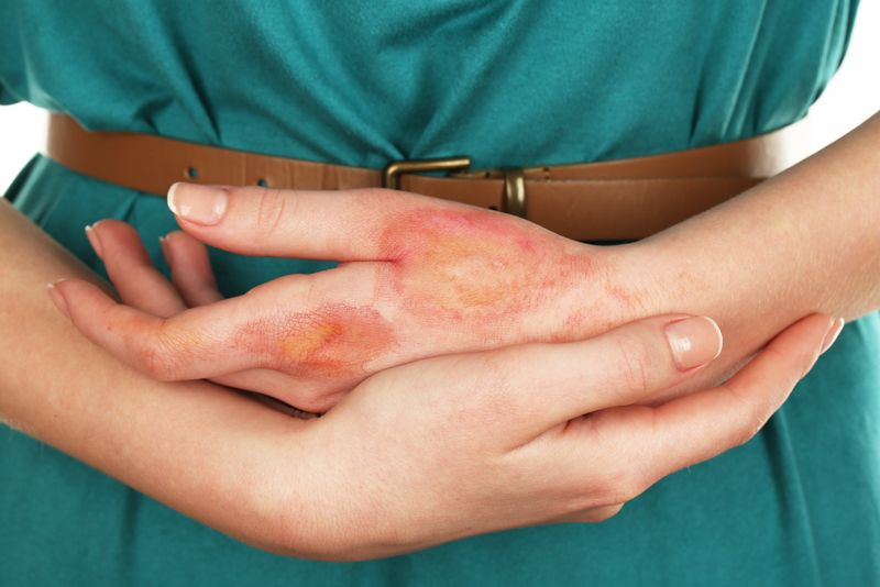10 Home Remedies for Burns