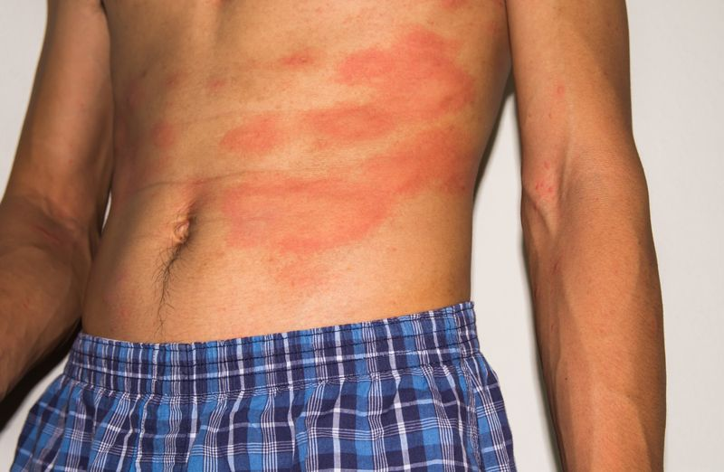 10 Additional Home Remedies for Eczema