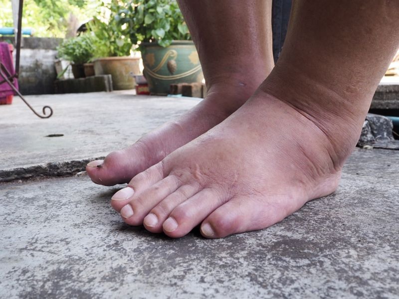 10 Home Remedies for Swollen Feet