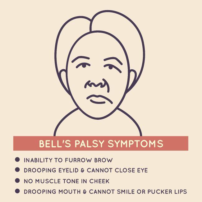 10 Symptoms of Bell's palsy
