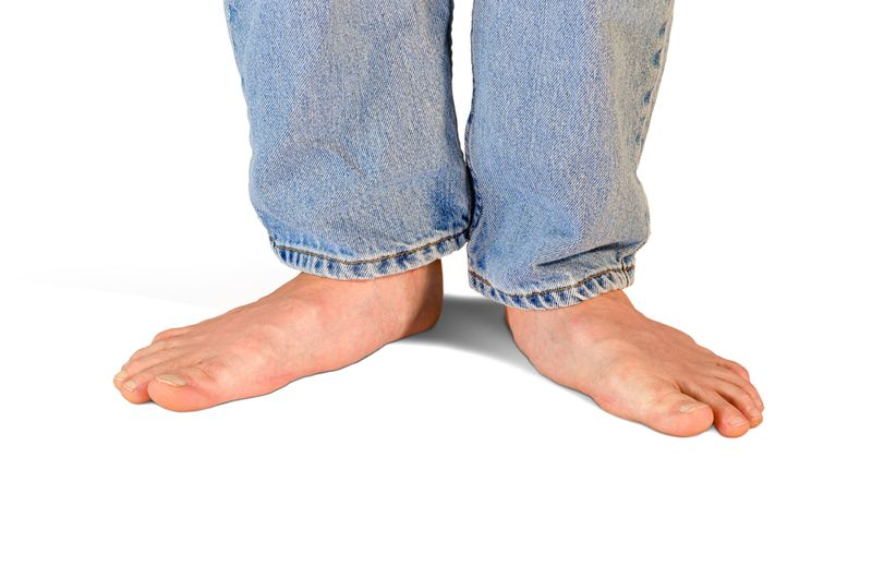 flat feet foot problems