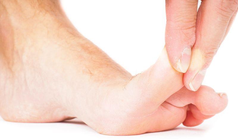 numb feet Metatarsalgia