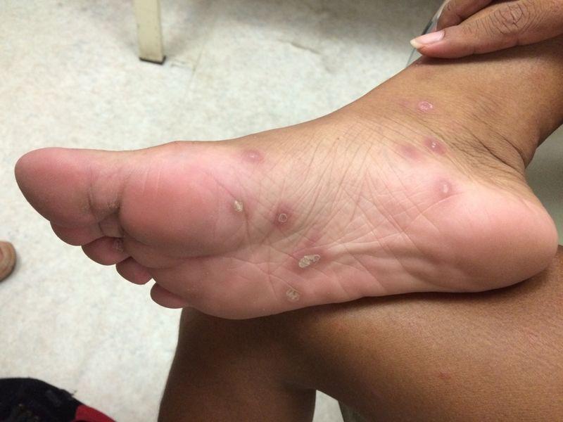 symptoms of syphilis