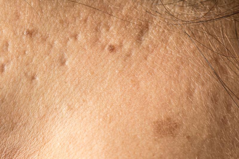 scarring Smallpox