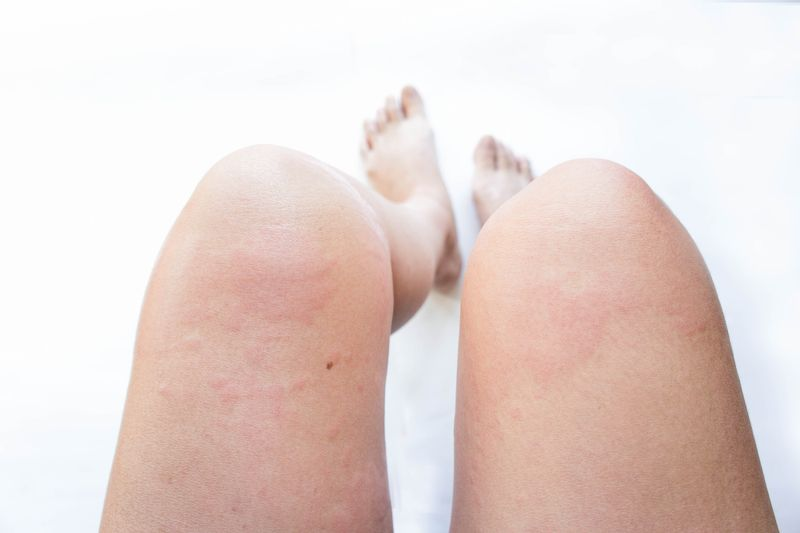 swelling hip flexor strain