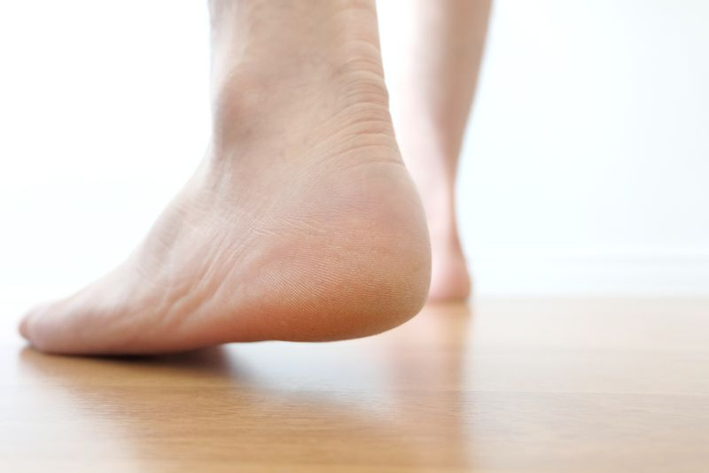 heel spur foot problems