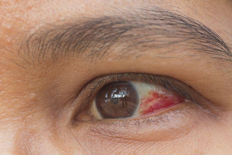 red eyes rubella virus