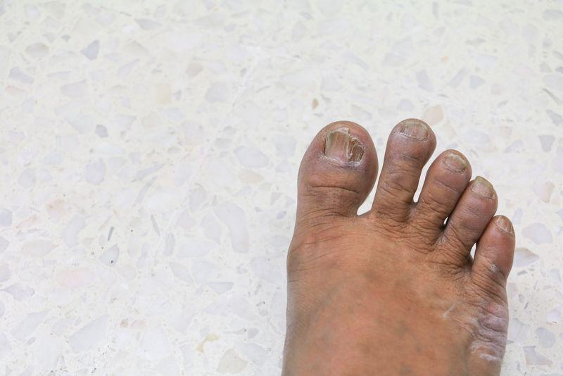 toenails foot problems