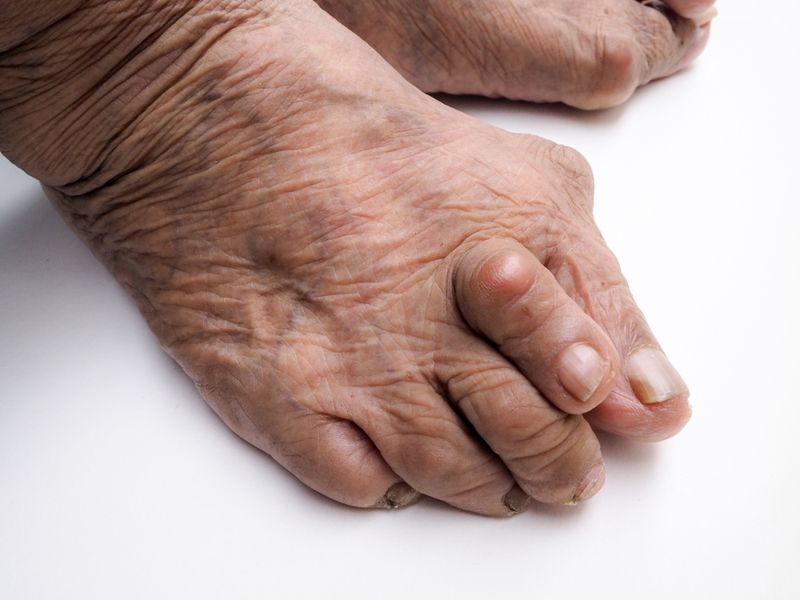 gout foot problems