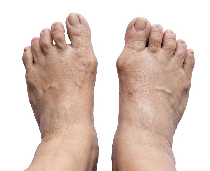 bunions foot problems