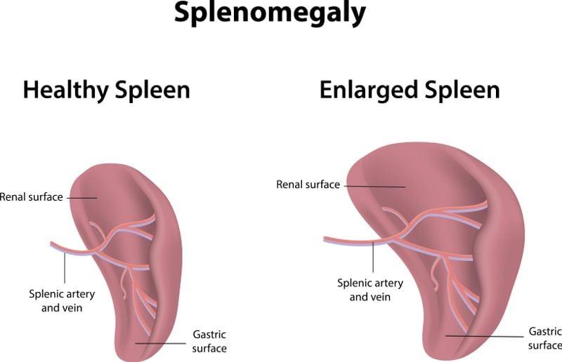spleen Myelofibrosis
