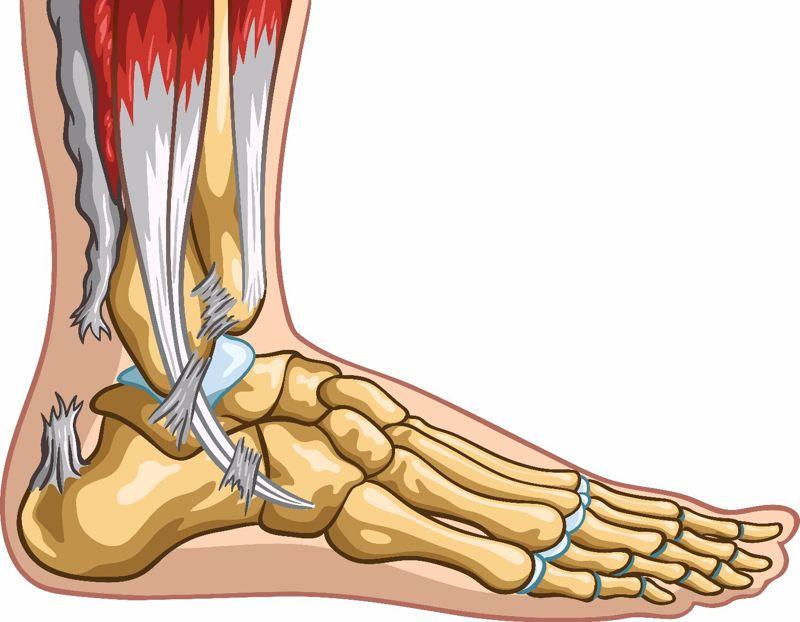 symptom of achilles tendon injury