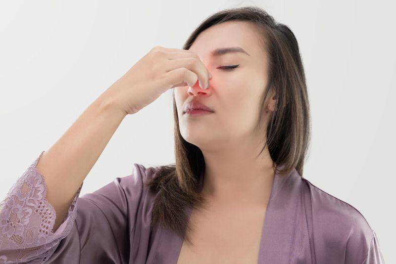 dengue fever nosebleed