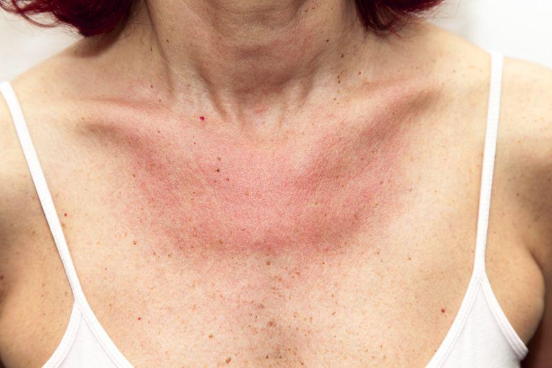 allergic reactions latex