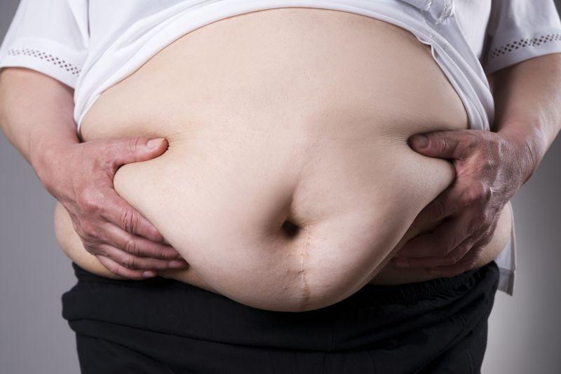 Metabolic Syndrome obesity