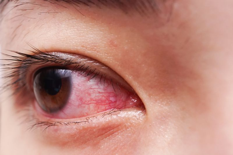 eyes bacterial infection