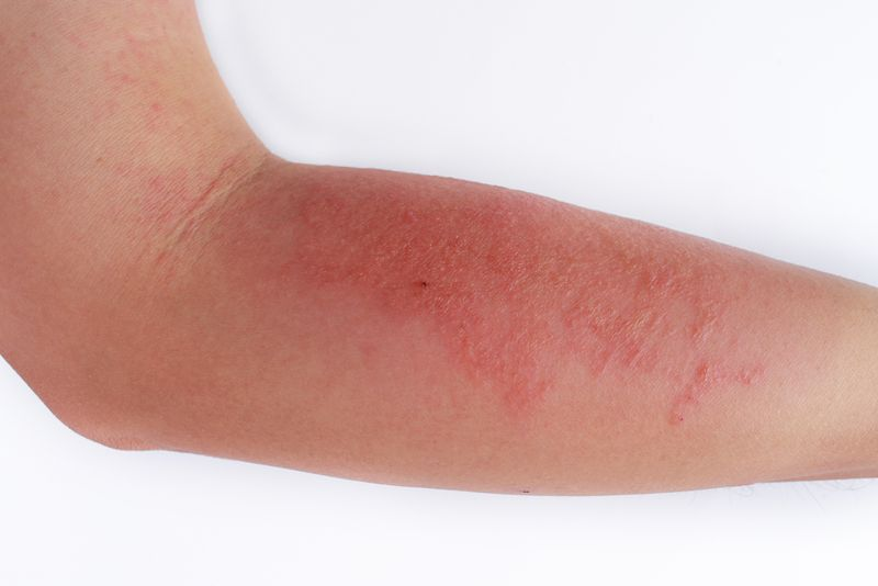 skin bacterial infection