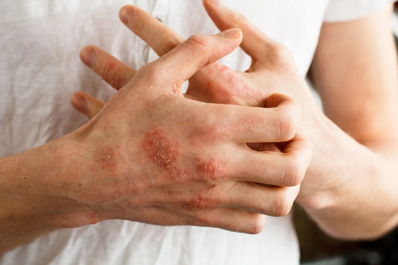 severe itch cancer