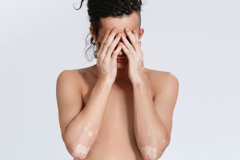 stress vitiligo