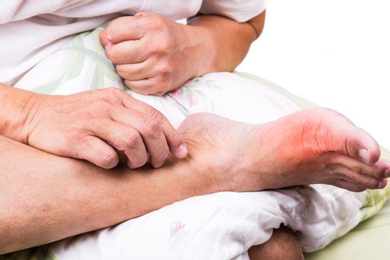 joints gout