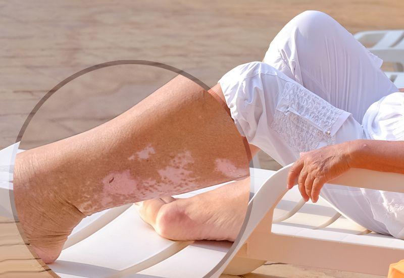 10 Causes of Vitiligo