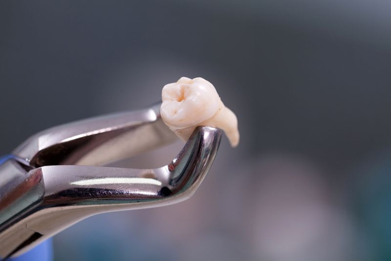 removing teeth tooth decay