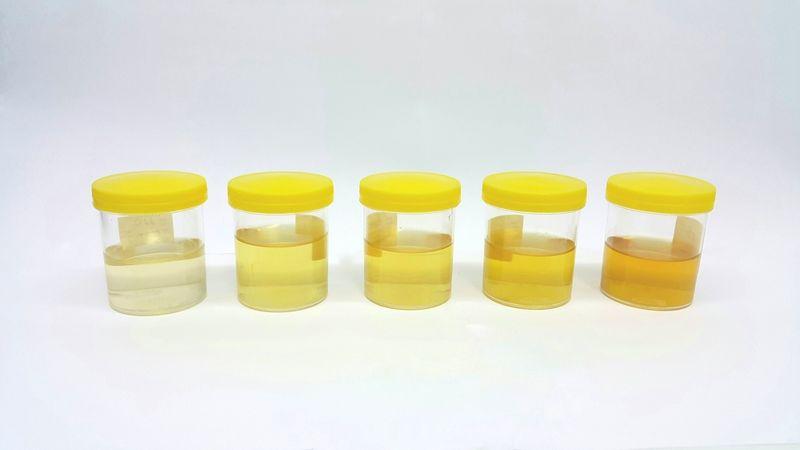 urine Hemolytic Anemia