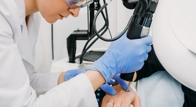 cryotherapy surgery