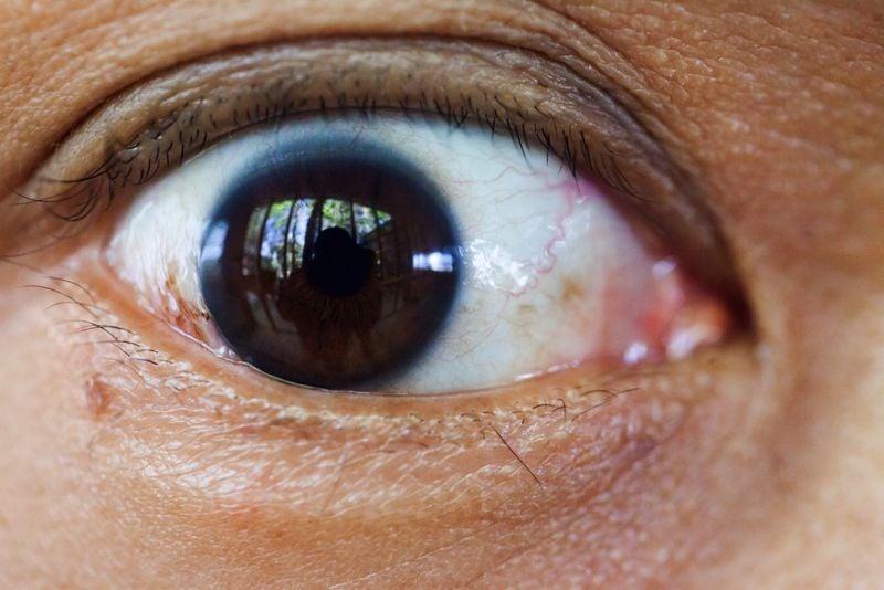 eyes cataract