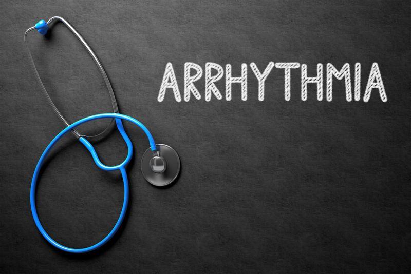 sweat arrhythmia