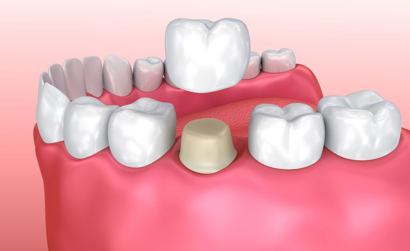 crown tooth decay