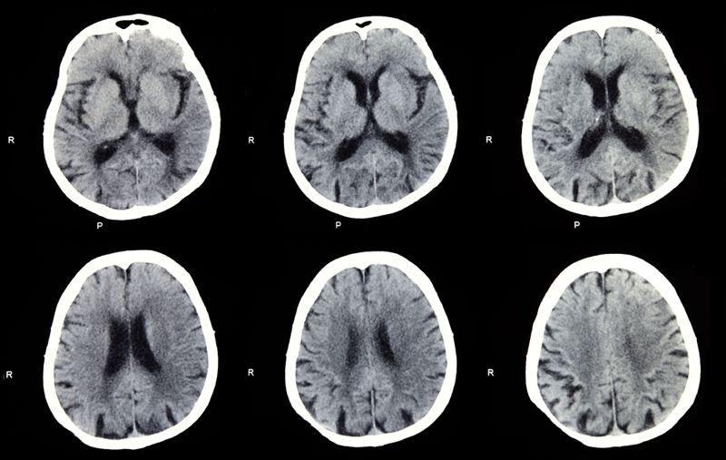 stroke brain diseases