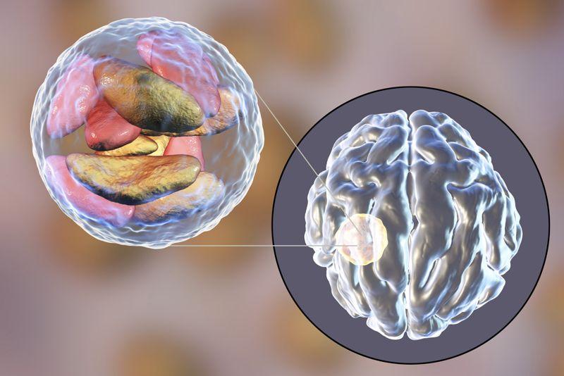 brain diseases infection