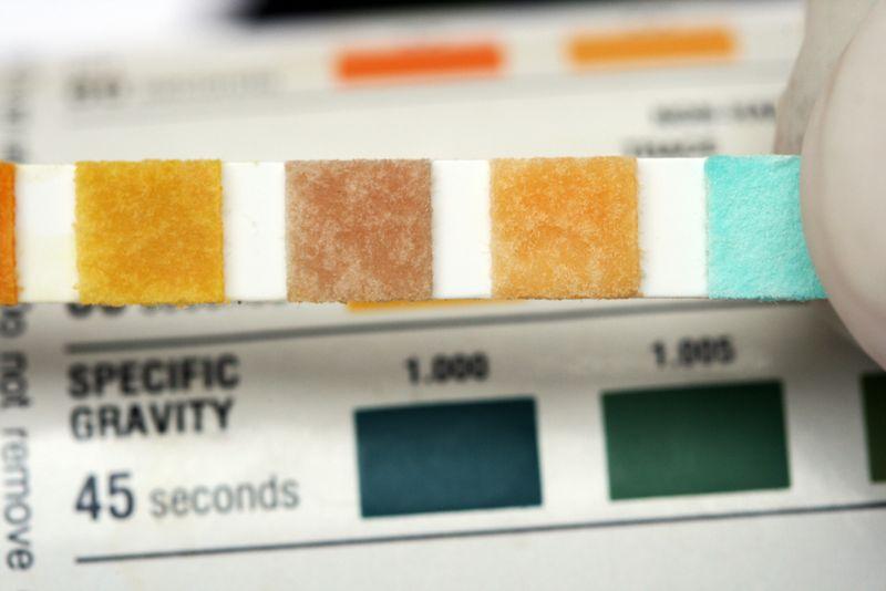 Urine Specific Gravity test