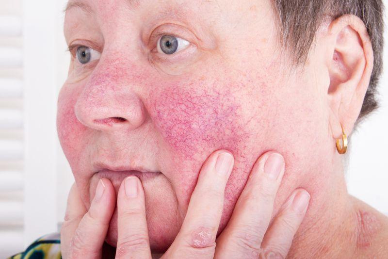 10 Treatments for Rosacea