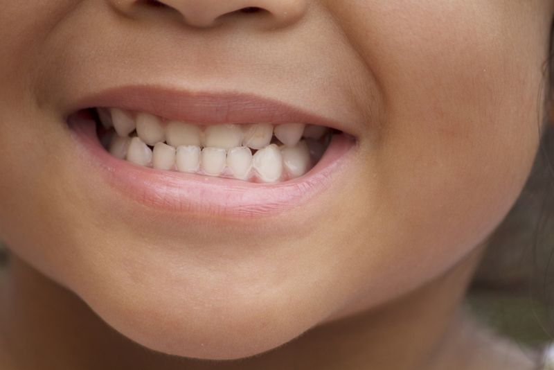 10 Treatments for Tooth Decay