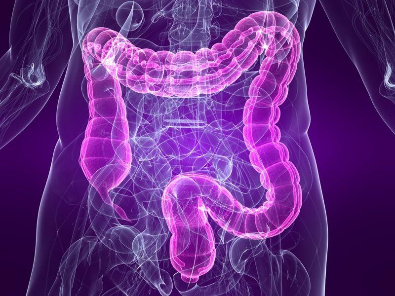 symptoms colon polyp