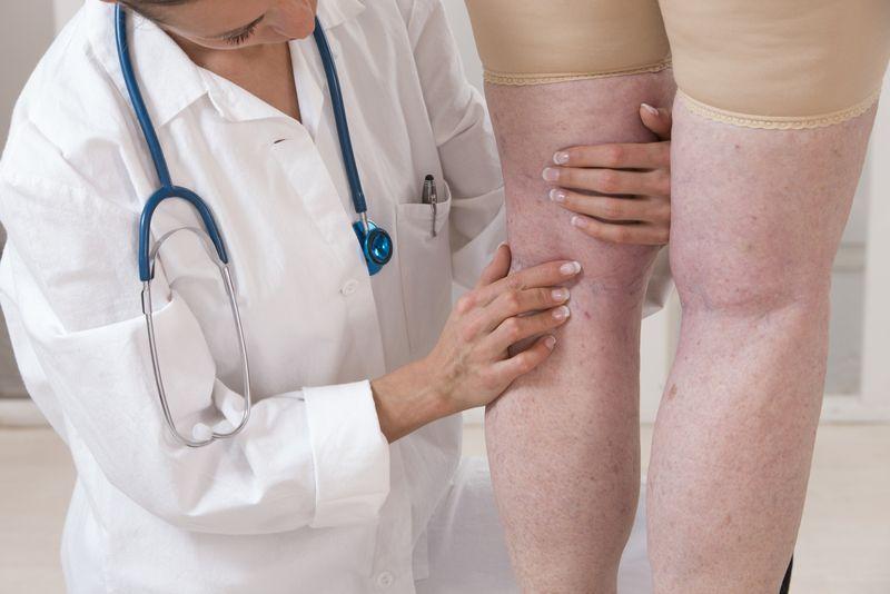 surgery varicose veins