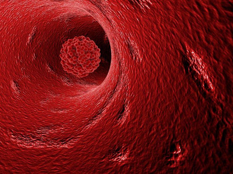 blood clot Pulmonary Hypertension