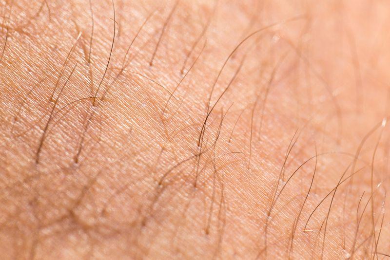 body hair Adrenal cancer
