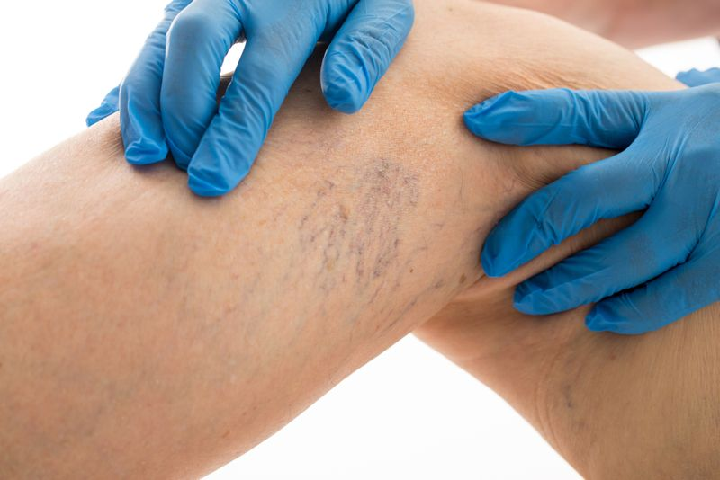 medication varicose veins