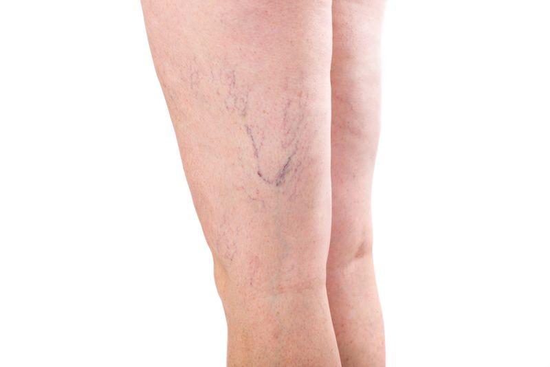massage varicose veins