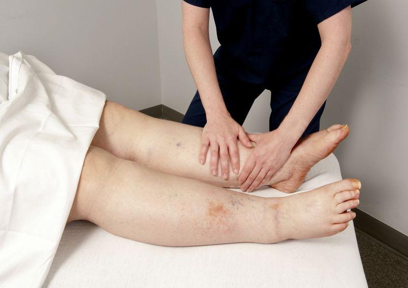 swelling Hamstring injuries