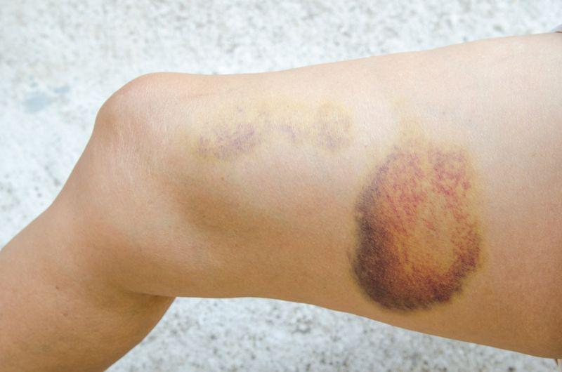 bruising tendon